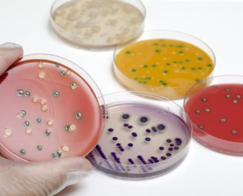 Analisis Listeria en Alimentos